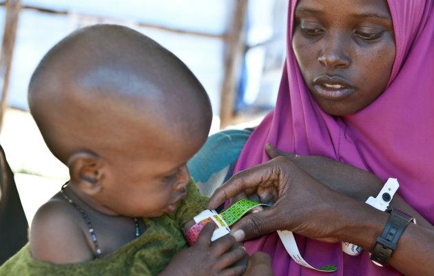 Et lille barn screenes for underernæring