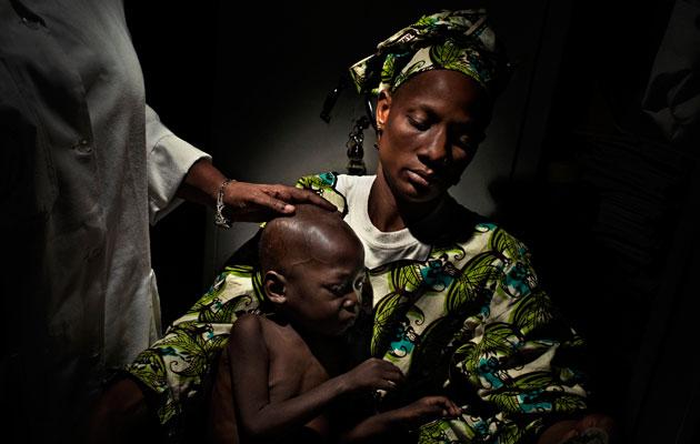 Mali 2008: Kassi Keita på 3 år var syg I 18 måneder, før han blev diagnosticeret med hiv. Hans mor Mariam Dembélé på 31 år bliver også behandlet for hiv. Foto: © Paolo Pellegrin
