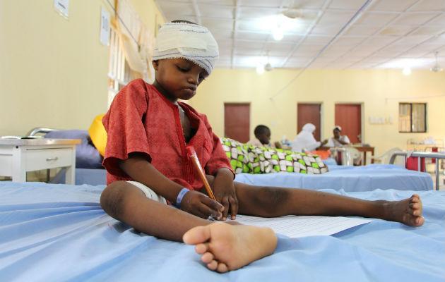 Zayyanu fik sygdommen noma, da han var fem år gammel. Han overlevede, men har store mèn. © Adavize BAIYE