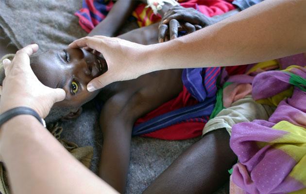 Trachoma kan medføre blindhed