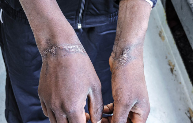 Jonathan har mange ar efter at have været udsat for tortur i Libyen.