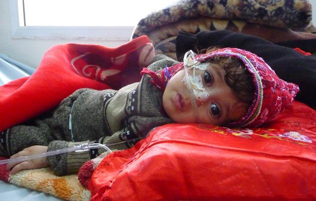 En lille pige får behandling for underernæring på et hospital i Yemen.