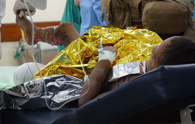 Her er den lille pige, der har fået sprængt benet af. Det er nu bundet ind og lægerne skal til at behandle det andet, der er flået af granatstykker.