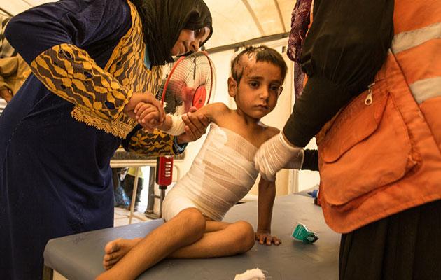 En dreng får behandling for sine skader i Syrien.