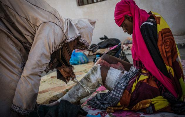 En kvinde har fået alvorlige kemiske forbrændinger på benene og sidder nu indespærret i et detentionscentre i Libyen.