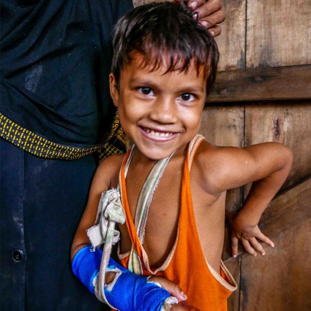 En lille pige er blevet operereret i sin arm i Bangladesh
