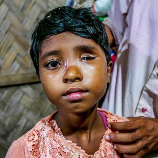 Øjet på den lille pige er skudt i stykker. Hun får behandling af Læger uden Grænser