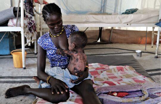 Mæslinger i udbrud i Sydsudan